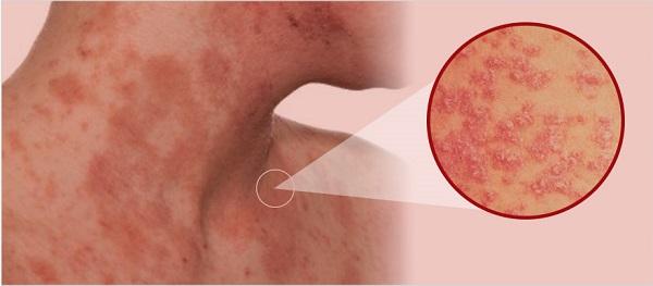Biểu hiện viêm da tiếp xúcBiểu hiện viêm da tiếp xúc