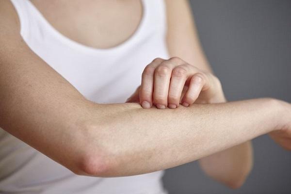 Những loại thuốc chữa bệnh chàm khô hiệu quả